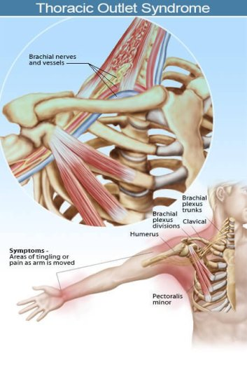 2015-illustration-thoracic-outet-syndrome