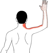 bf28901211cc6f6bbef80068925858ee--arm-exercises-neck-pain