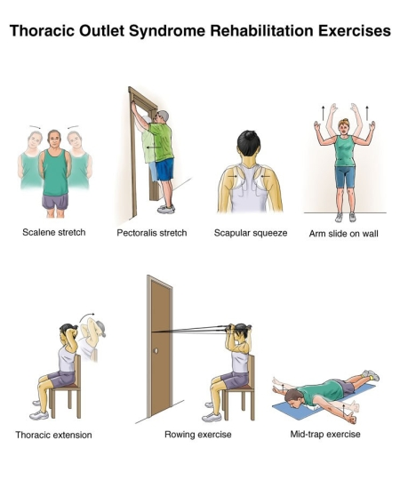 Thoracic-Outlet-exercises